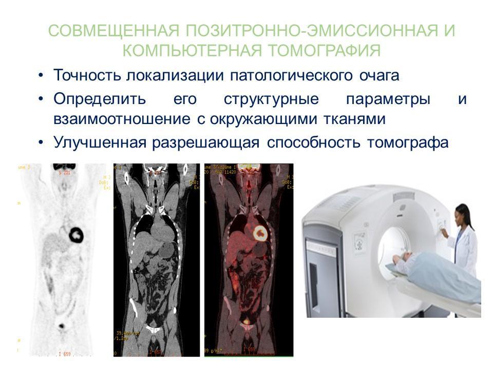 Диагностика рака легких методом ПЭТ-КТ